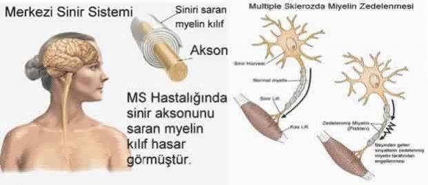 Ms Hastalığı Nedir Ms Hastalığı Hakkında Ayrıntılı Bilgi