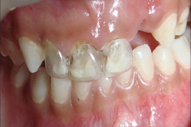 Достоинством этого метода является то, что он помогает восстановить функциональность поврежденных зубов.