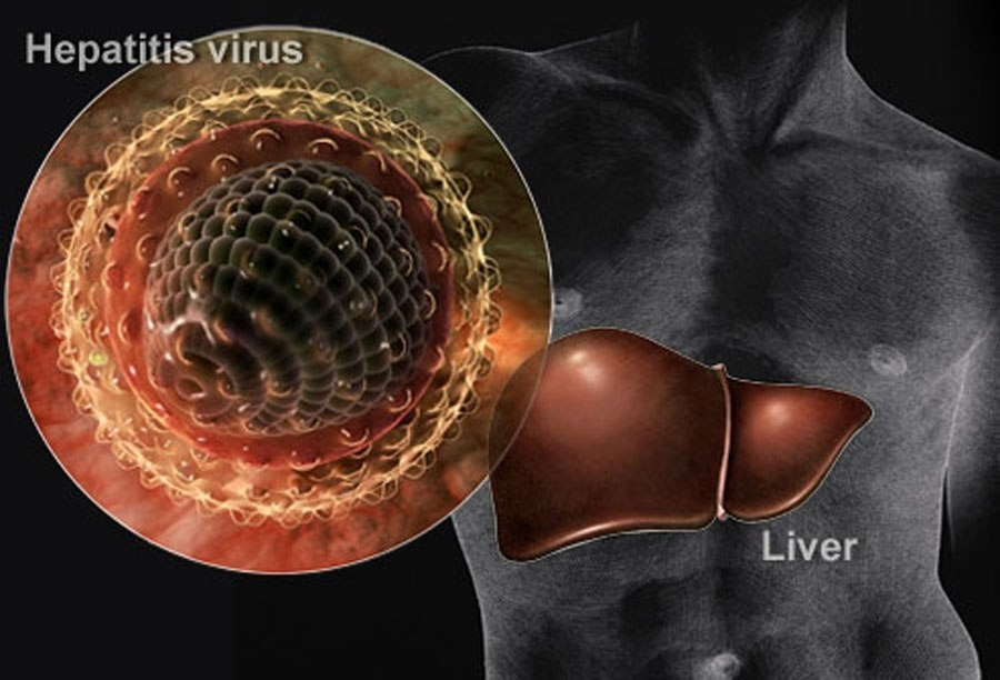 hepatitis is a disease caused by a A: hepatitis is an inflammation of the liver the condition can be self-limiting or can progress to fibrosis (scarring), cirrhosis or liver cancer hepatitis viruses are the most common cause of hepatitis in the world but other infections, toxic substances (eg alcohol, certain drugs), and.