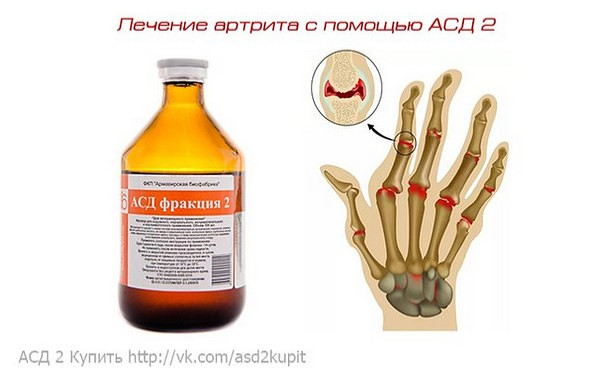 АСД 2 и ревматоидный артрит